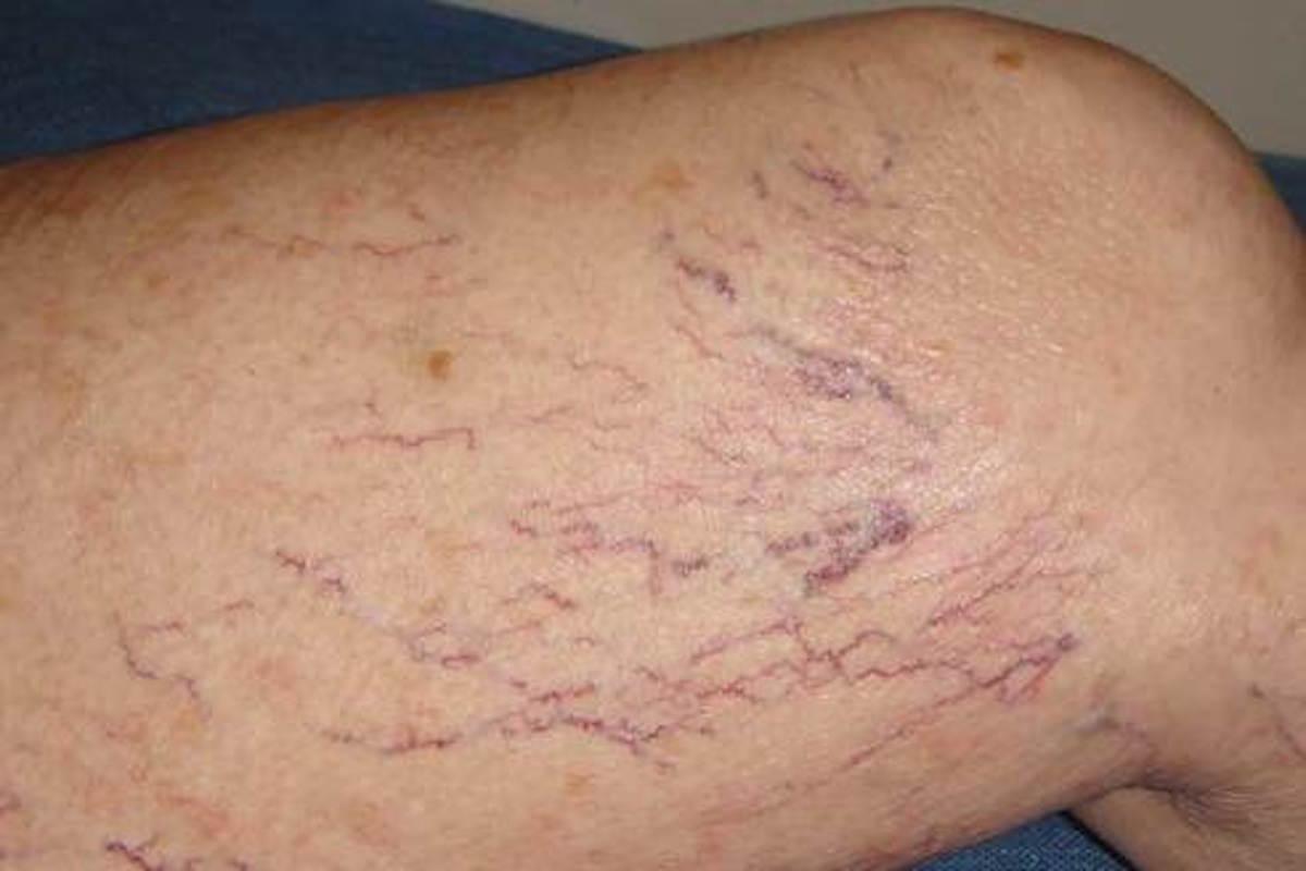 spatader-behandeling-1